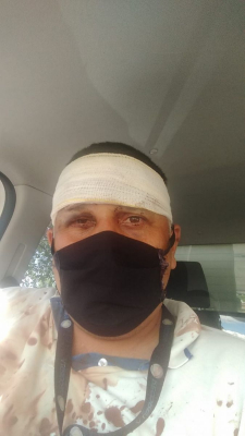 Anderson Santos da Rocha foi agredido populares enquanto trabalhava e precisou ser levado ao hospital / Foto: Arquivo pessoal